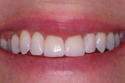 Flawlessly restored smile after treatment