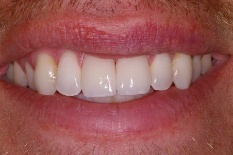 Perfectly repaired top front tooth