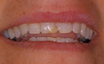 Worn and damaged teeth