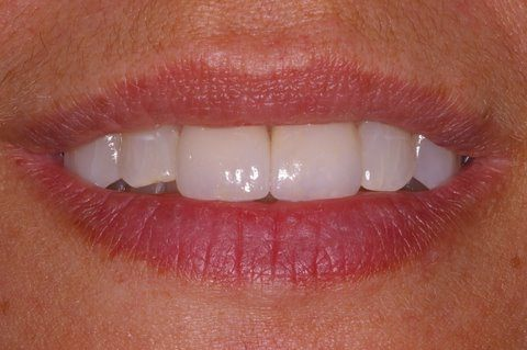 Two top teeth brightened