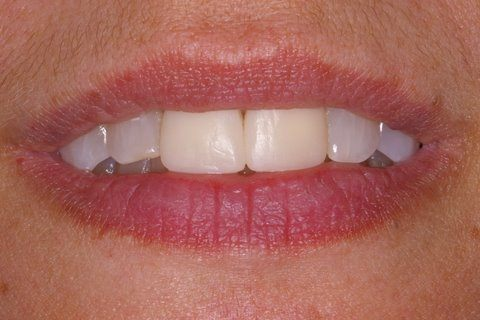 Two top teeth discolored