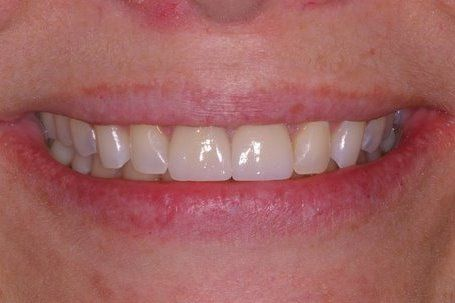 Bright white front top teeth