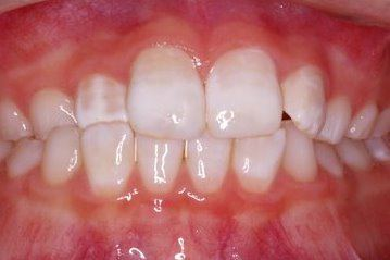 Healthy and white front teeth