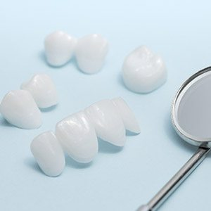 Dental crown restorations before placement