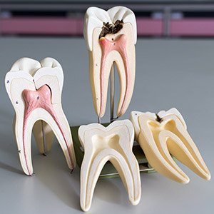 Models of damaged and healthy teeth