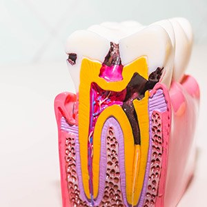 Model of a the inside of a damaged tooth