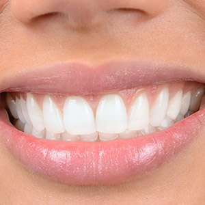 Closeup of bright white smile after treatment